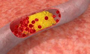 mỡ máu cao gây bệnh mạch vành