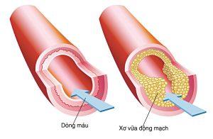 Triglyceride cao gây xơ vữa động mạch